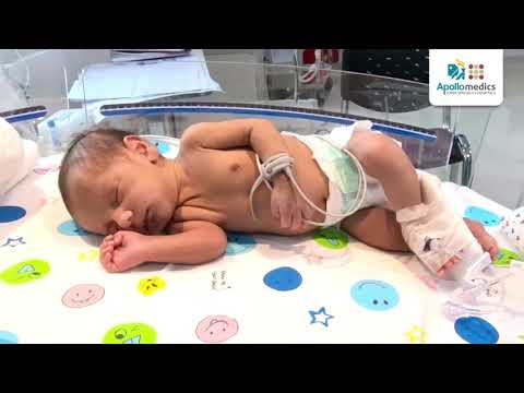 Life Saver: Doctors Save Lifeless Baby | A Real Story Of Apollomedics Hospitals Lucknow