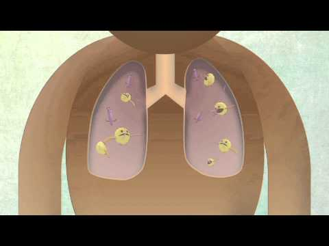 How The Body Reacts To Tuberculosis