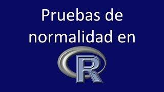 Pruebas de normalidad en R