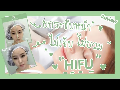 The Clover clinic review HIFU - YouTube