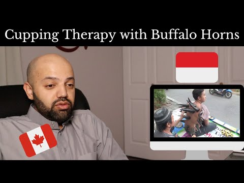 Cupping Therapy with Buffalo Horns in Indonesia - Reaction (BEST REACTION)