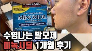 수염 발모제 미녹시딜 1탄, 한달동안 사용해봤어요! 확…