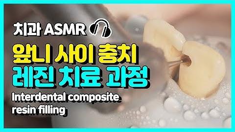 앞니 사이 충치 레진 치료하는 과정 공개!   고품격 치과 ASMR   당신이 아~ 한 사이에