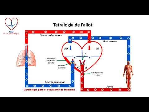 Circuito de la Tetralogia de Fallot