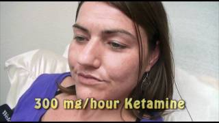 3-Day Ketamine Treatment for Complex Regional Pain Syndrome