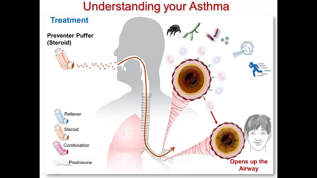 How do steroids work for asthma steroid shot for herniated disc