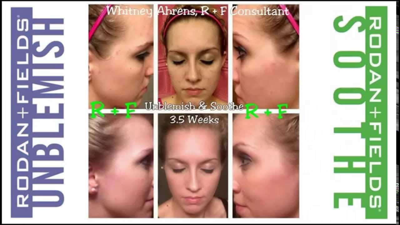 rodan fields before and after pictures youtube