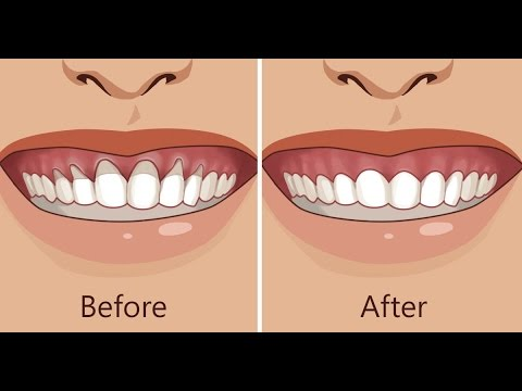 how to stop receding gums reddit