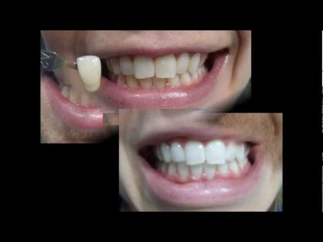 Zoom Teeth Whitening Reviews Before And After Photos Youtube