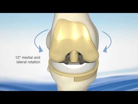 EnduRo™ Rotating Hinge Knee System Assembly