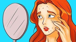 皮膚の専門家が警告するニキビの神話10選