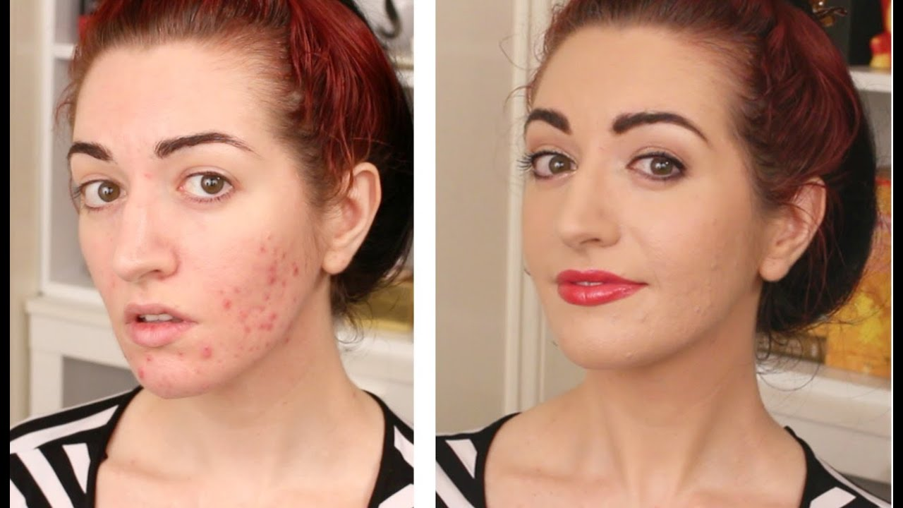How To Cover Acne & Scarring • My Full Coverage Foundation Routine ...