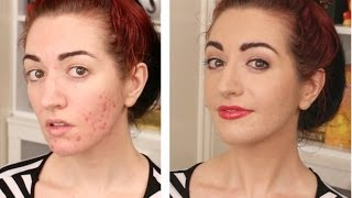 How To Cover Acne & Scarring • My Full Coverage Foundation Routine Thumbnail