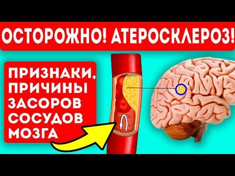 Сосуды мозга в опасности! Вот так выглядят первые симптомы атеросклероза!