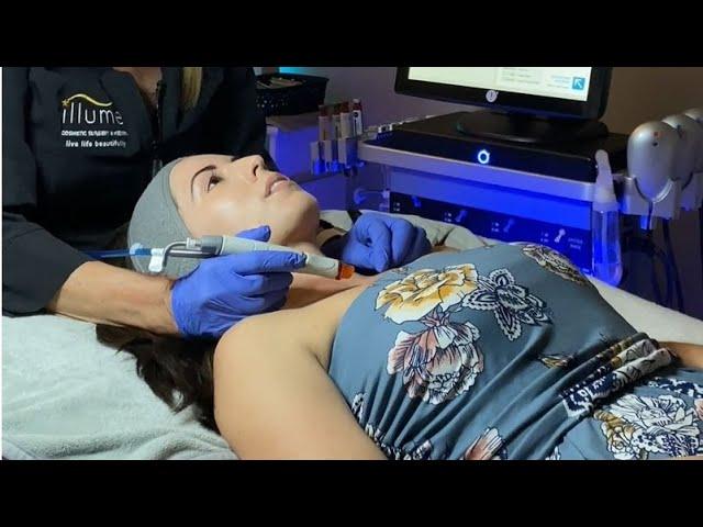 HydraFacialMD Treatment at Illume Cosmetic Surgery and MedSpa