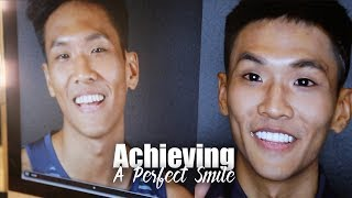 Achieving a Perfect Smile! | Bro