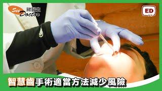 智慧齒的煩惱 (二)  - 智慧齒手術適當方法減少風險 thumbnail