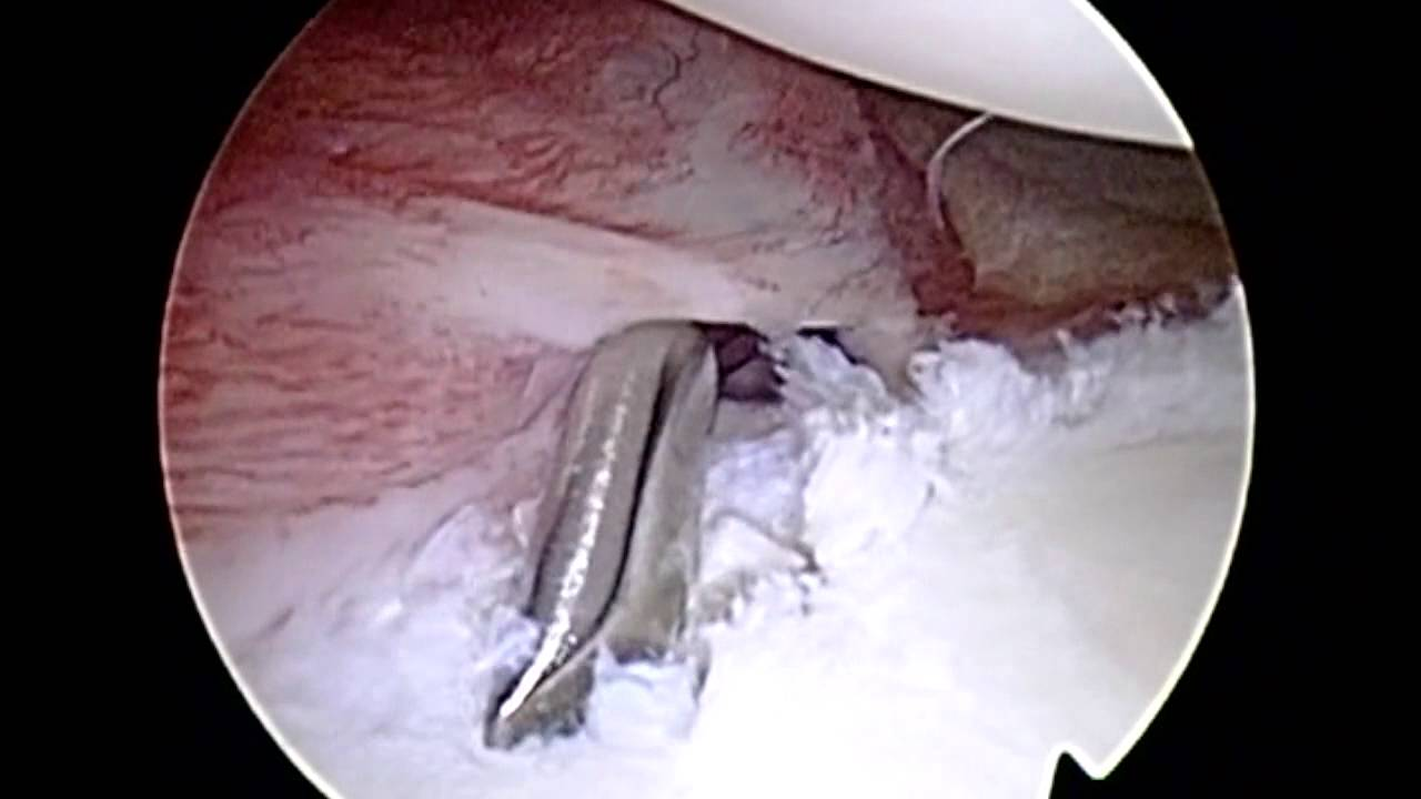 Shoulder Arthroscopy with Posterior Labral Repair - YouTube