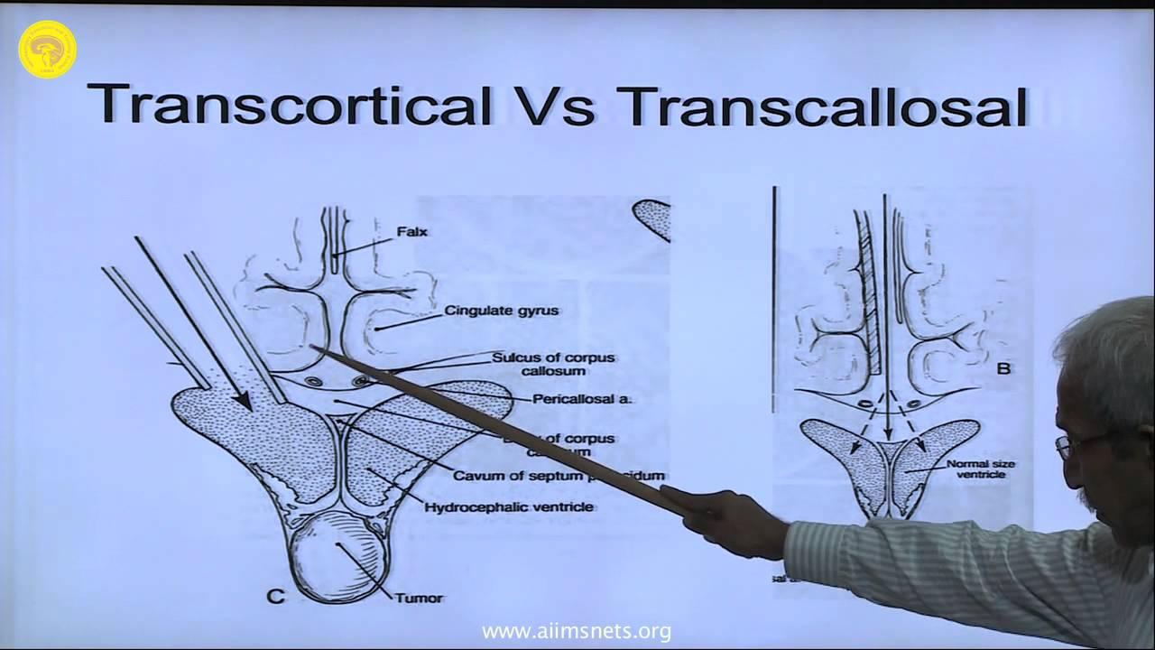 Cicluri de triocefalie - Simptomele și tratamentul tricocefalelor la adulți