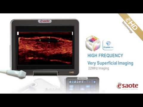 LINEAR IMAGING eHD Technology