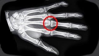 Das passiert mit deinen Fingern, wenn sie knacken