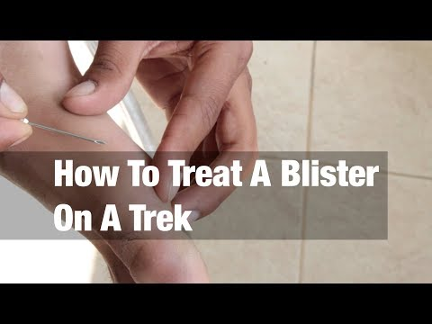 How To Treat A Blister On A Trek