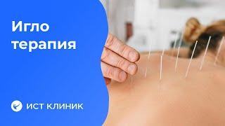 Иглотерапия (китайское иглоукалывание,  иглорефлексотерапия, акупунктура). [видео]