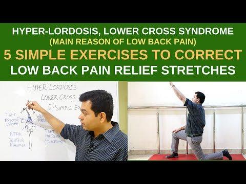 Hyperlordosis, 5 Simple Exercises For Lower Back Pain Relief, LOWER CROSS SYNDROME, Pelvic Tilt
