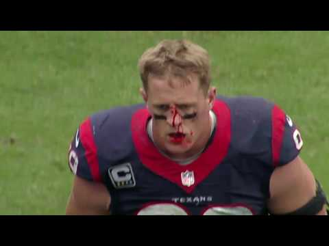 JJ Watt gets a bloody nose after tackling Russell Wilson (9/29/2013)
