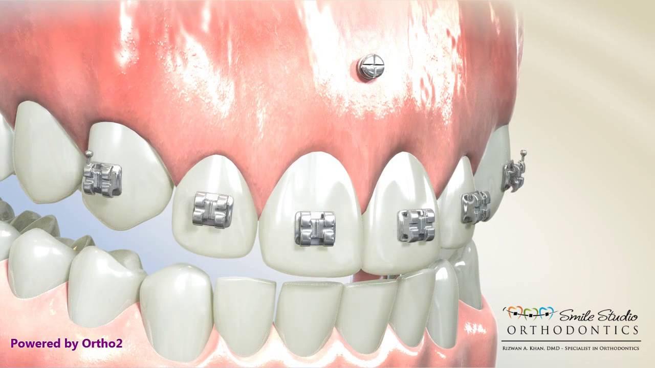tad orthodontics