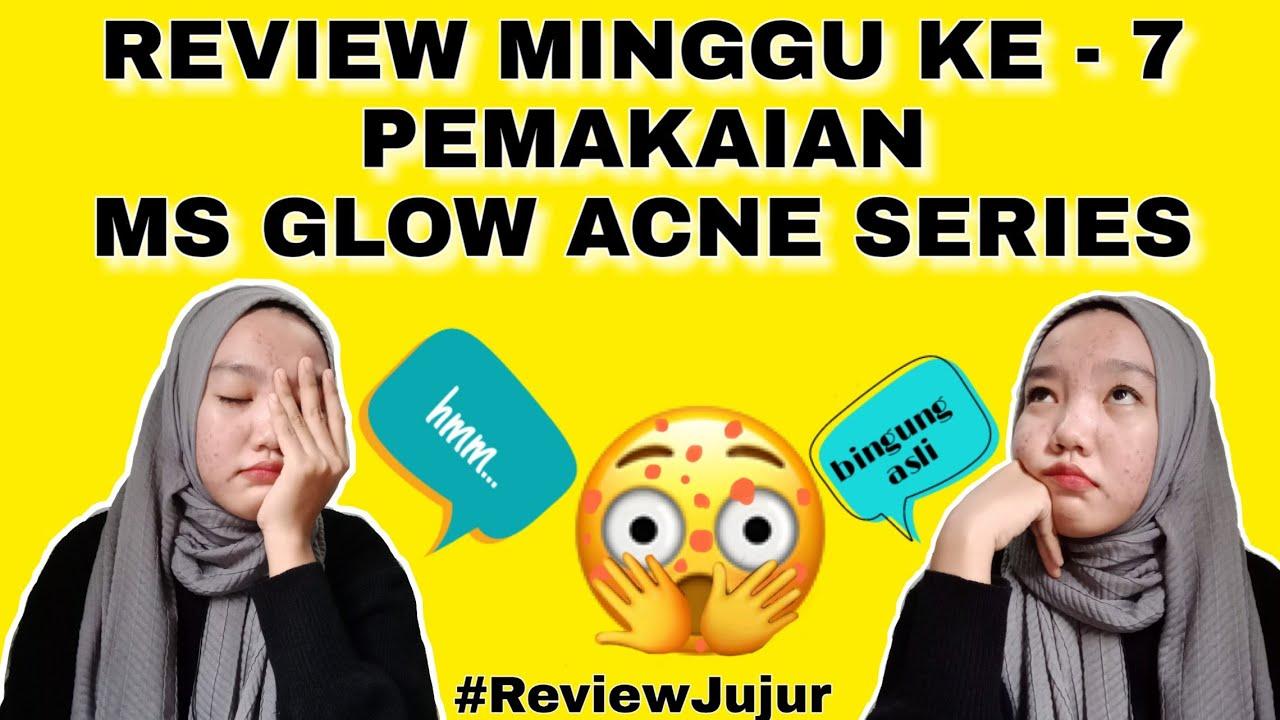 MINGGU KE-7 PEMAKAIAN MS GLOW ACNE SERIES | REVIEW MS GLOW ...