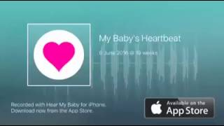 What to expect at 19 weeks pregnant - hearing Kirsty's baby's heartbeat using iPhone app!