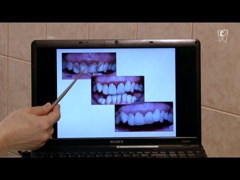 Некрасивые зубы можно сделать красивыми!