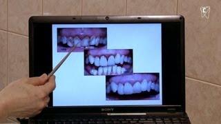 Некрасивые зубы можно сделать красивыми!(Некрасивые, темные, кривые, неровные зубы причиняют беспокойство их обладателю. Так или иначе, красота наше..., 2012-04-24T13:43:47.000Z)