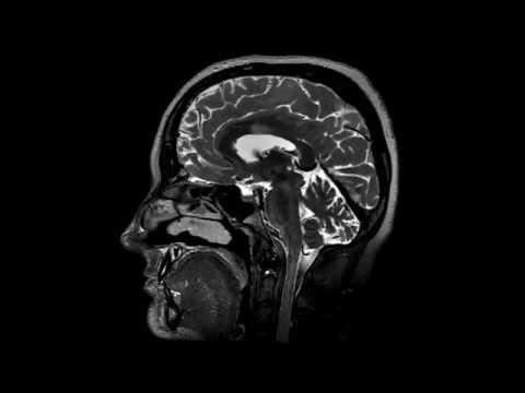 3D T2 brain MRI imaging