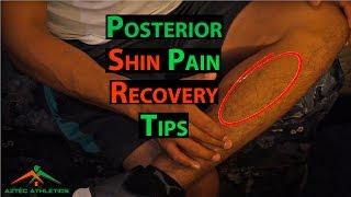 HOW TO STOP SHIN SPLINTS   DEALING WITH POSTERIOR SHIN PAIN✔