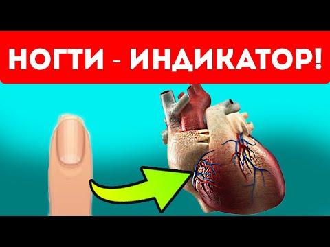 Вот как ногти могут спасти от болезней!