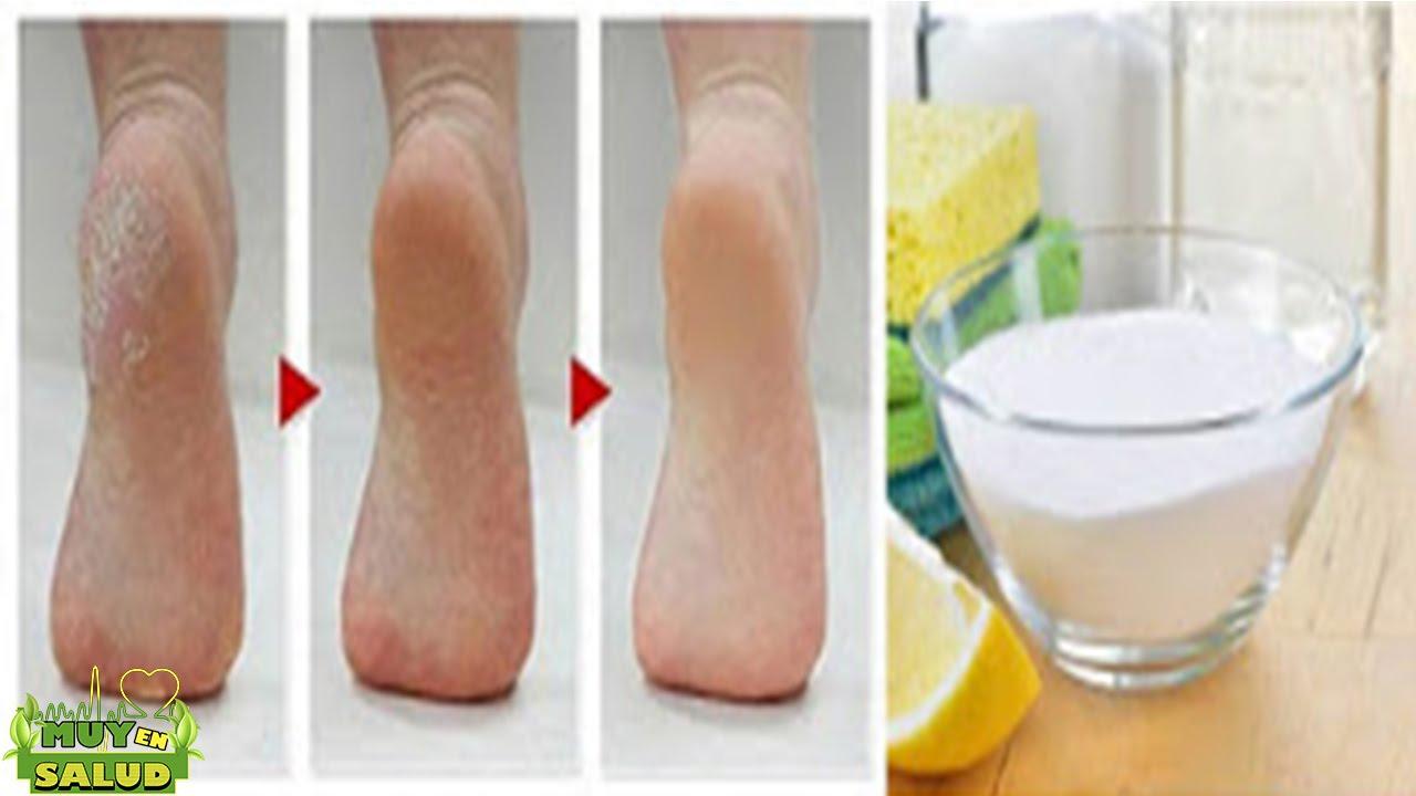 El bicarbonato de sodio til para dejar tus dedos y - Como mantener los pies calentitos ...