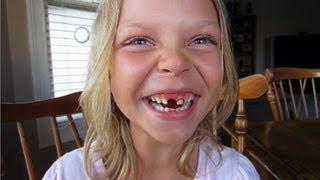 Дети удаляют себе зубы(Почему у нас так мало фантазии было в детстве?) Приколись представляет / П#СЬ., 2012-11-25T02:25:26.000Z)