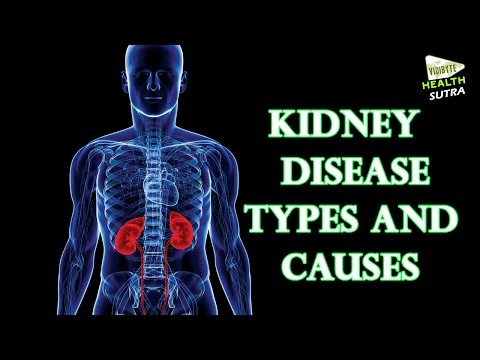 Kidney disease   types and causes -  Health Sutra