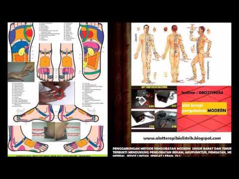 Terapi Lintah Untuk Penderita Diabetes Melitus