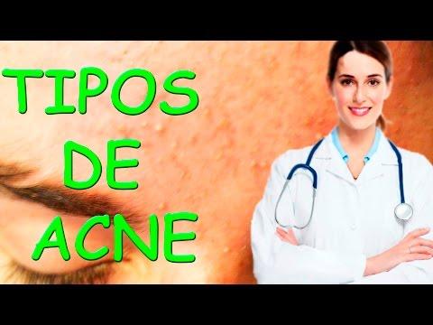Cuales son los Tipos de ACNÉ que afectan tu Piel Dra Valeria Peroski