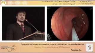 Эндоскопическое клипирование в лечение перворации сигмавидной кишки