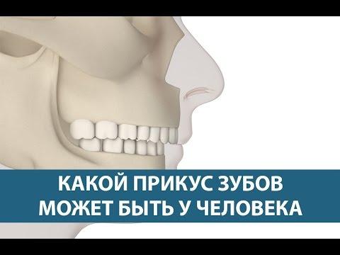 Ортодонтическое лечение. Виды неправильного прикуса.