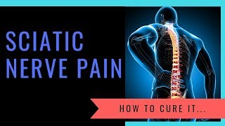 What Causes Sciatica? And How To Cure It......