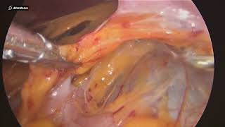 28052019 Laparoscopic Cystectomy for Right Kidney Cyst