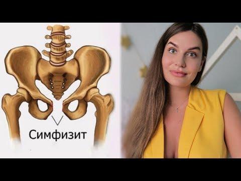 2 РОДОВ с СИМФИЗИТОМ // МОЙ ОПЫТ // 12 мм расхождение