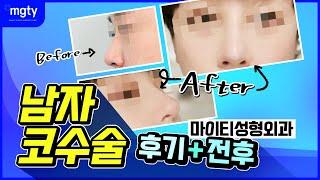 남자코수술 후기+전후 [마이티성형외과]