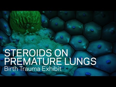 Effects Of Steroids On Premature Lungs - Birth Trauma Animation
