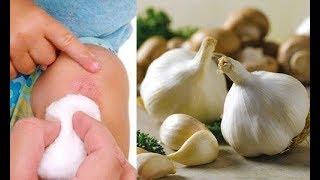 Les 8 meilleurs antiseptiques naturels pour la peau